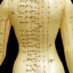 Acupuncture is an excellent compliment to chiropractic care